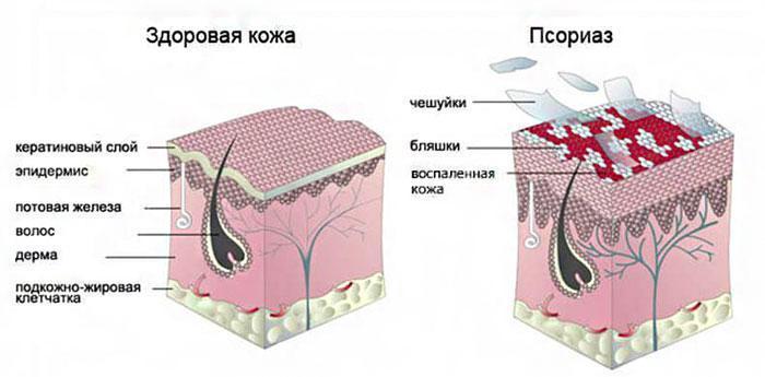 кожа, поражённая псориазом