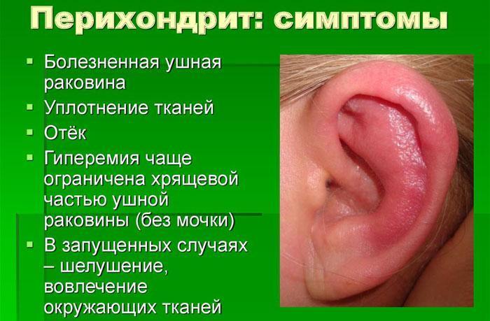 Симптомы перихондрита