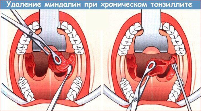 Удаление гланд при тонзиллите