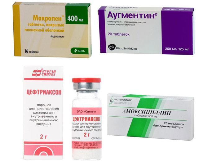 Антибиотики для лечения гнойной ангины