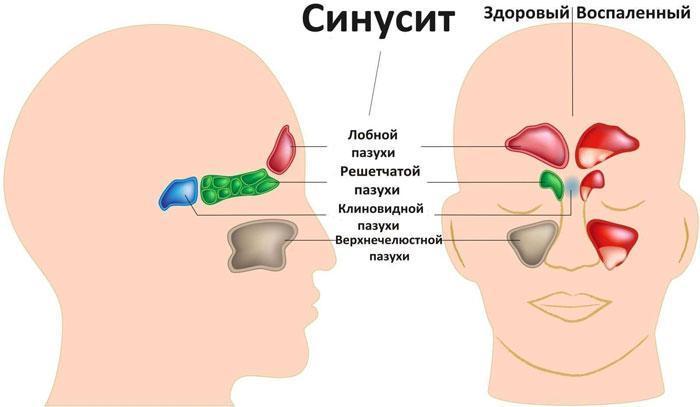 Симптомы синуситов