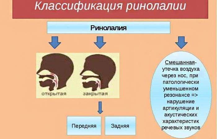 Классификация ринолалии