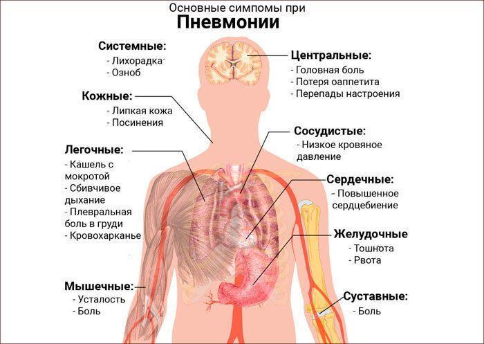 Основные симптомы при пневмонии