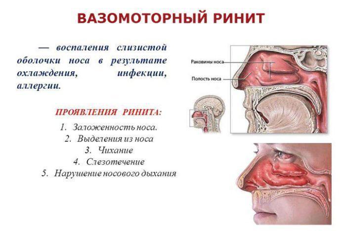 Симптомы ринита