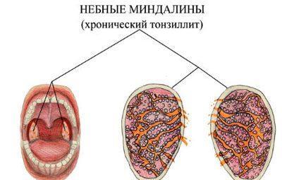 Проявление хронического тонзиллита