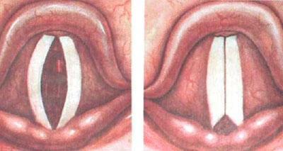 Гипертрофический ларингит