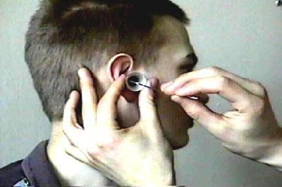 Мазок из уха
