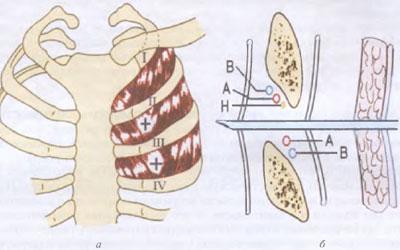Торакотомия при пневмотораксе