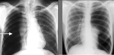 Пневмоторакс на рентгене