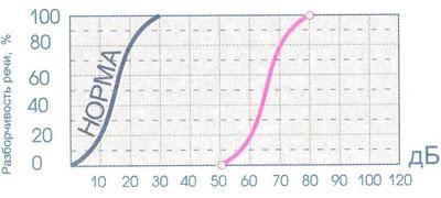 Шкала определения уровня слуха