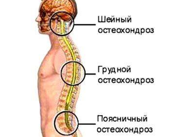 Локализация остеохондроза