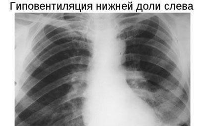 Гиповентиляция легких на рентгене
