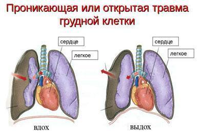 Травма грудной клетки и легкого