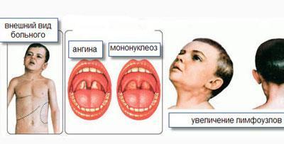 Признаки инфекционного мононуклеоза