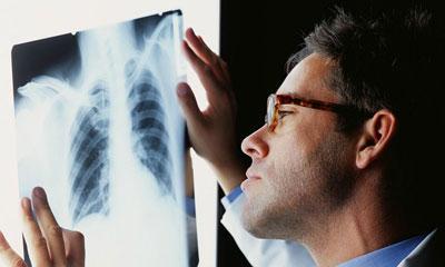 Диагностика по снимку рентгена легких