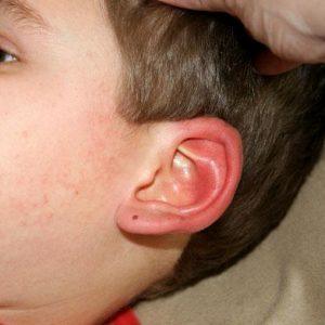 Покраснения уха