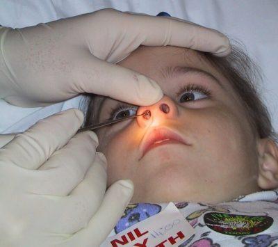 Попадание инородных тел в носовую полость