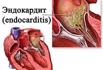 Проявление эндокардита