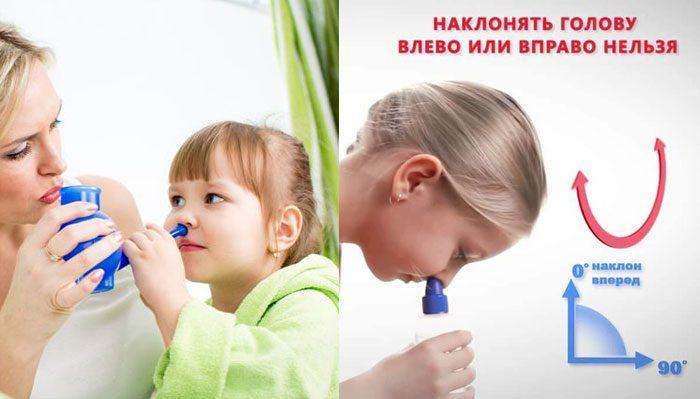 Способы промывания носа