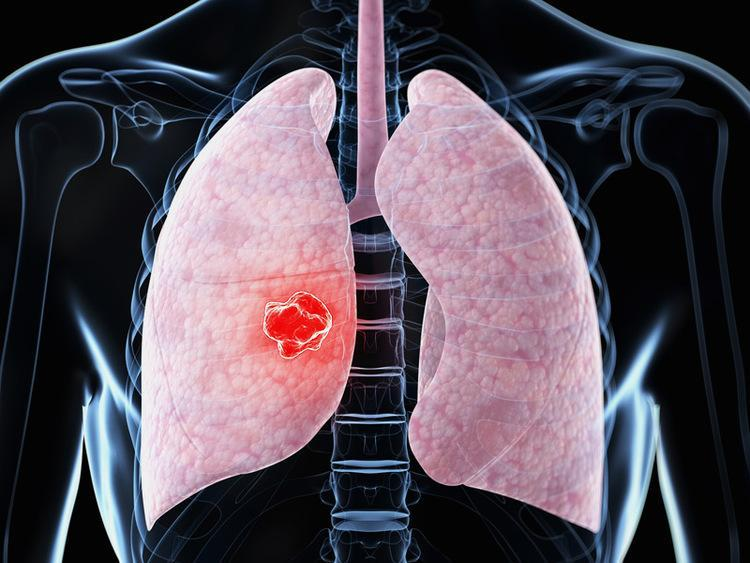 Причины возникновения пневмонии у пожилых людей