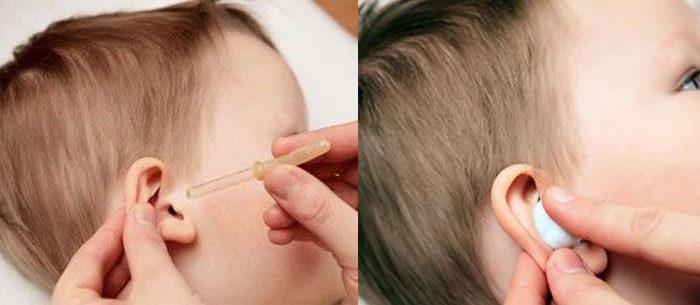 Как правильно закапать ухо
