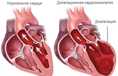 Проявление кардиосклероза