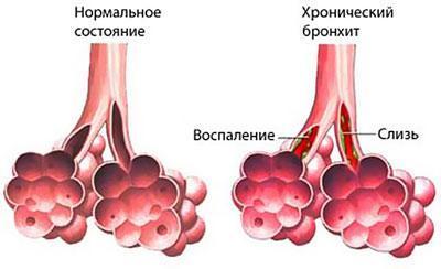 Альвеолы при бронхите