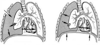 Клапанный пневмоторакс