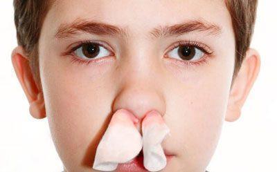 Турунды в носу