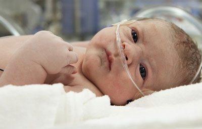 Асфиксия у новорожденного