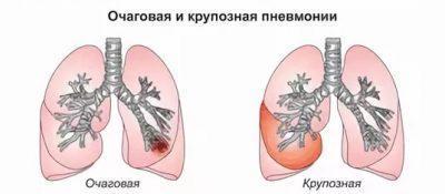 Отличие крупозной пневмонии
