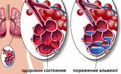 \жидкость в альвеолах