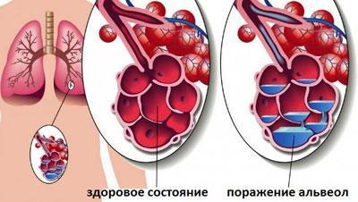 Альвеолы при крупозной пневмонии