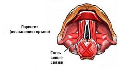 Голосовые связки при ларингите