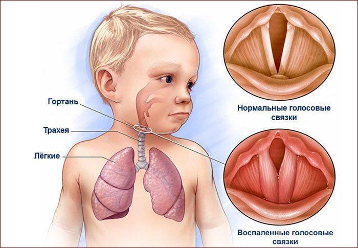 Отек голосовых связок ребенка