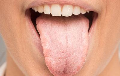 Налет на языке при глоссите