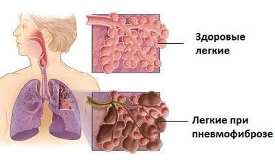 Заболевание пневмофиброз