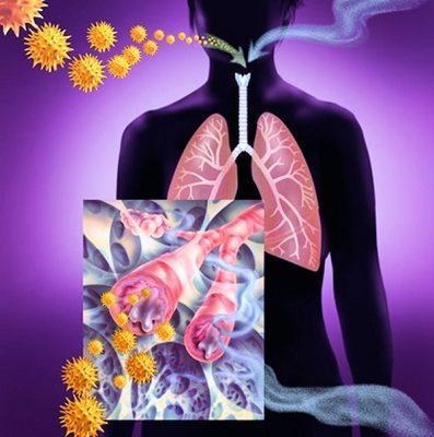 Катаральные явления верхних отделов дыхательных путей