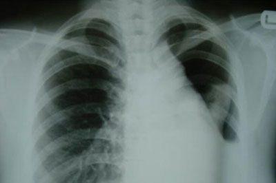 Коллапс легкого на рентгене