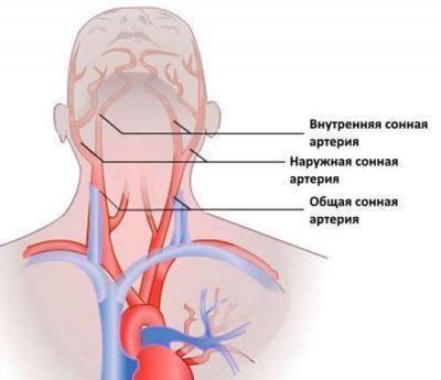 Внутренняя сонная артерия, проходящая через полость среднего уха