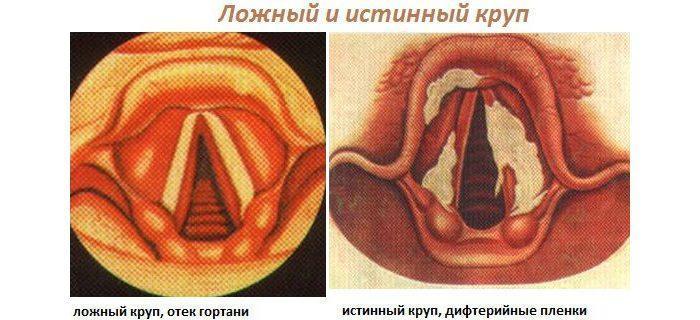 Дифтерийная форма или истинный круп