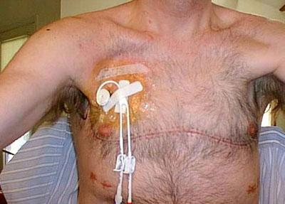 Человек после пересадки легких