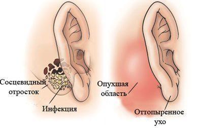 Симптомы мастоидита