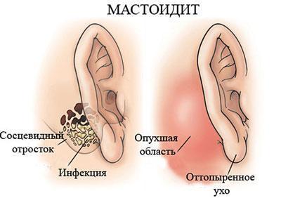 Проявление мастоидита