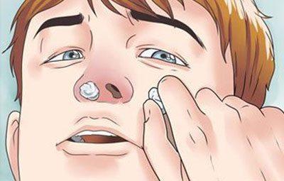Турунда в нос