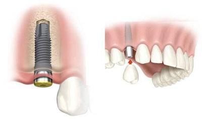 Штифты в зубах