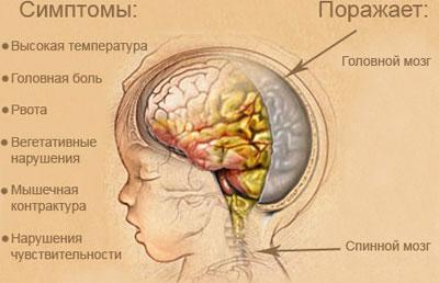 Симптомы и причины менингита