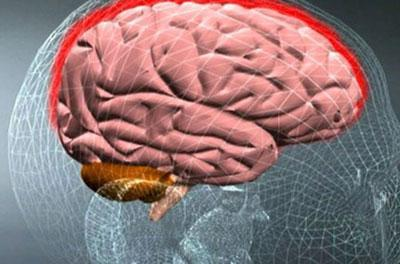 Воспаление оболочки мозга