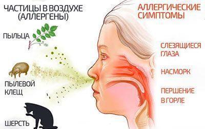 Причины и симптомы аллергического насморка