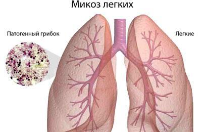 Микоз легких